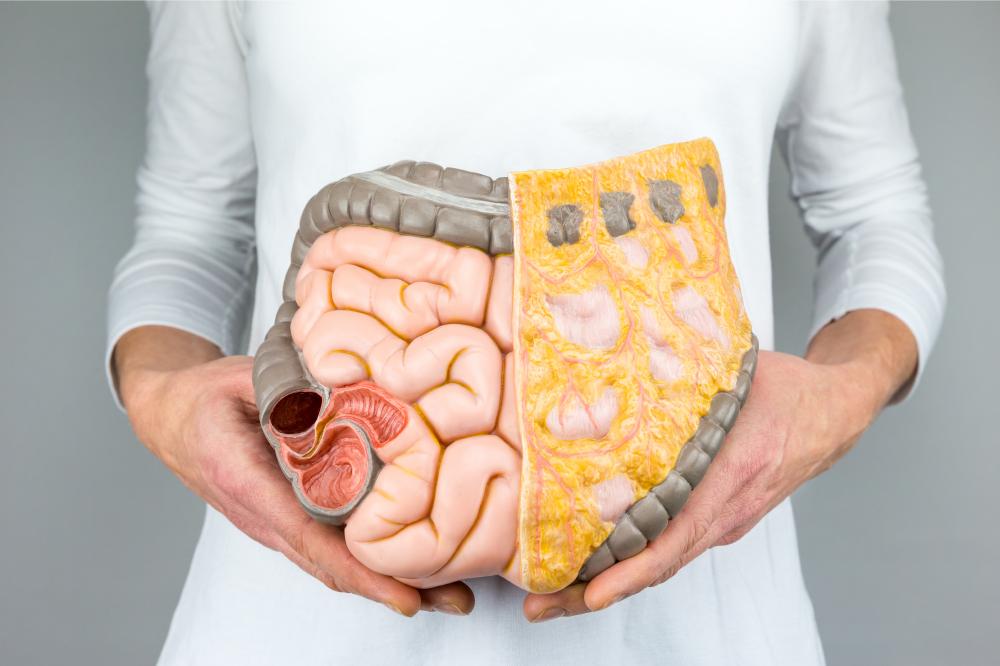 Mulher segurando um modelo de intestinos na frente do corpo | Conheça as doenças intestinais mais comuns