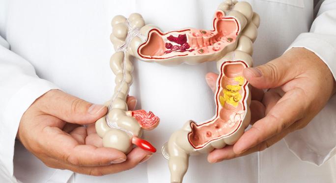 Quais são os tipos de colostomia - médico segurando um protótipo do aparelho digestivo | Instituto Digestivo